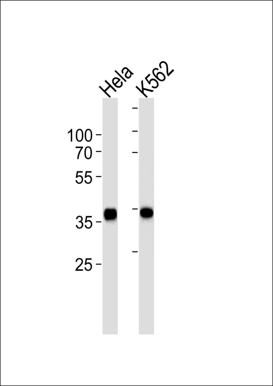 ANXA1 Antibody in Western Blot (WB)