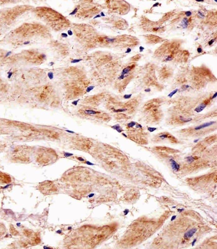 PINK1 Antibody in Immunohistochemistry (Paraffin) (IHC (P))