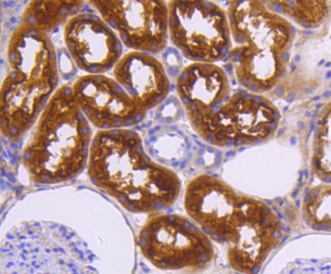 Neuropilin-1 Antibody in Immunohistochemistry (Paraffin) (IHC (P))