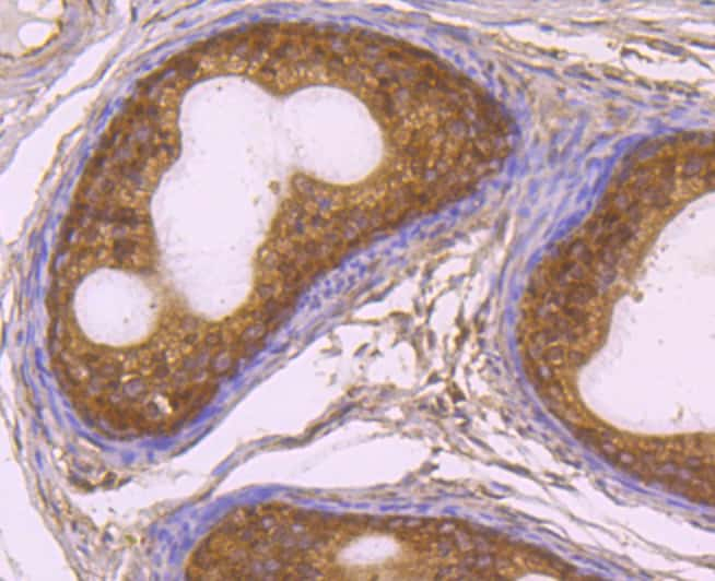 Rad51 Antibody in Immunohistochemistry (Paraffin) (IHC (P))
