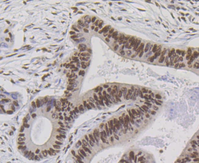 Bub3 Antibody in Immunohistochemistry (Paraffin) (IHC (P))