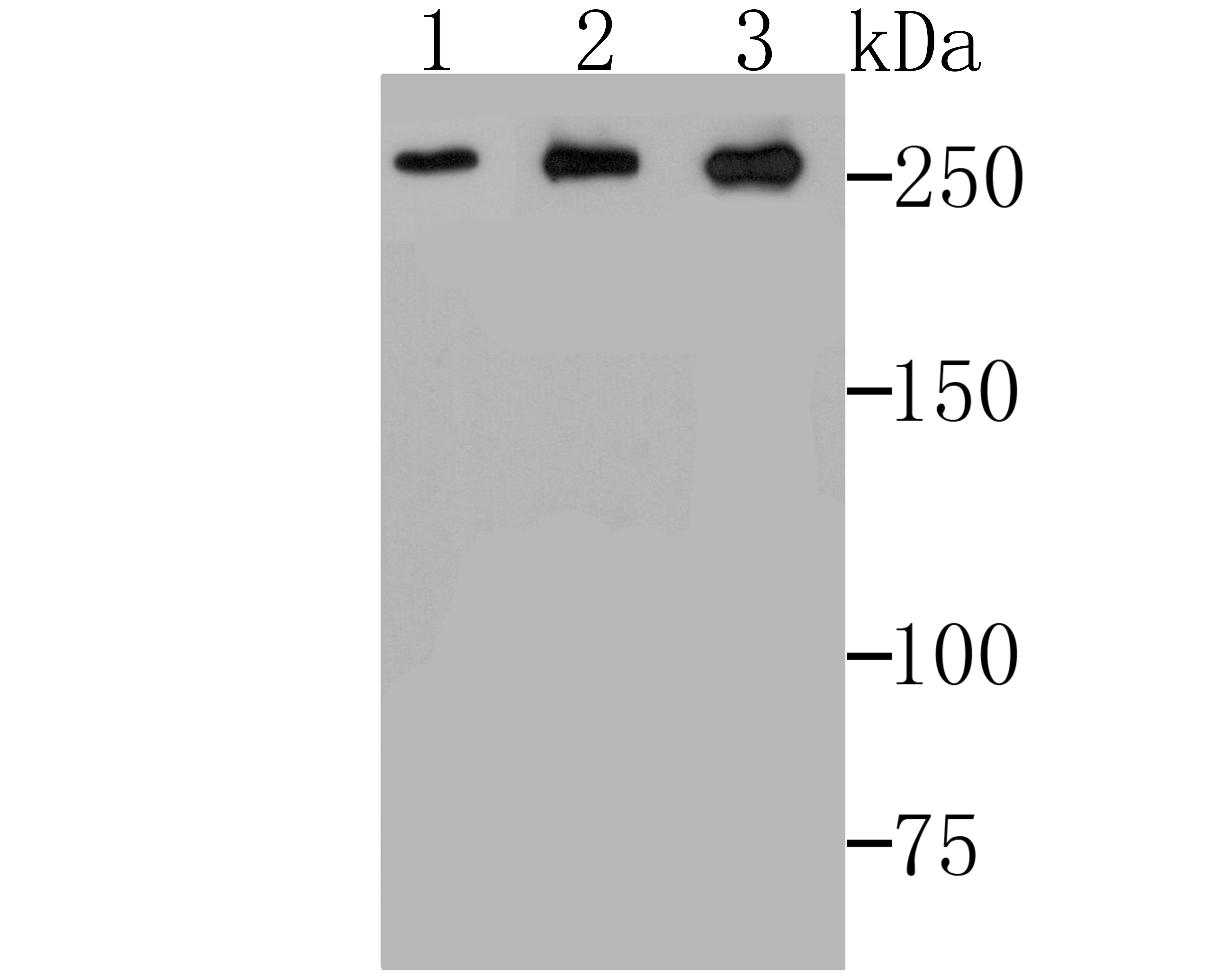 ADAMTS13 Antibody in Western Blot (WB)