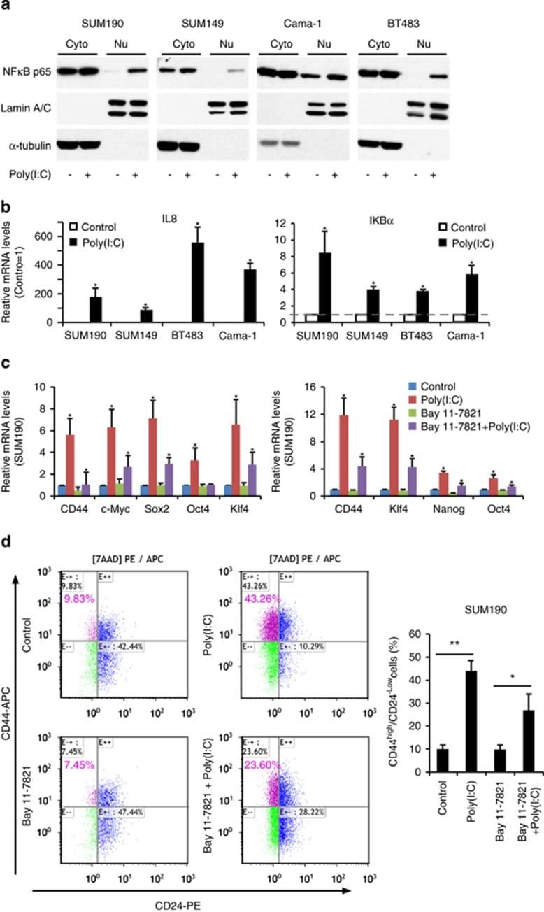 Phospho-NFkB p65 (Ser536) Antibody