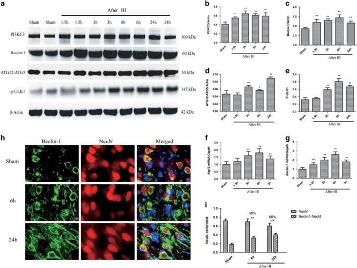 VPS34 Antibody