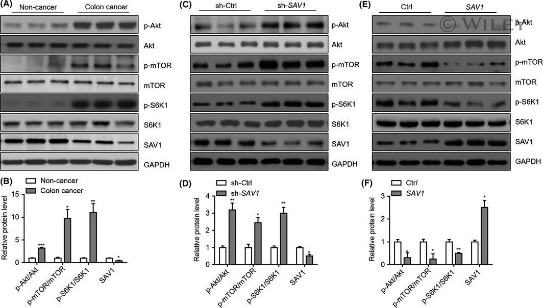 p70 S6 Kinase Antibody