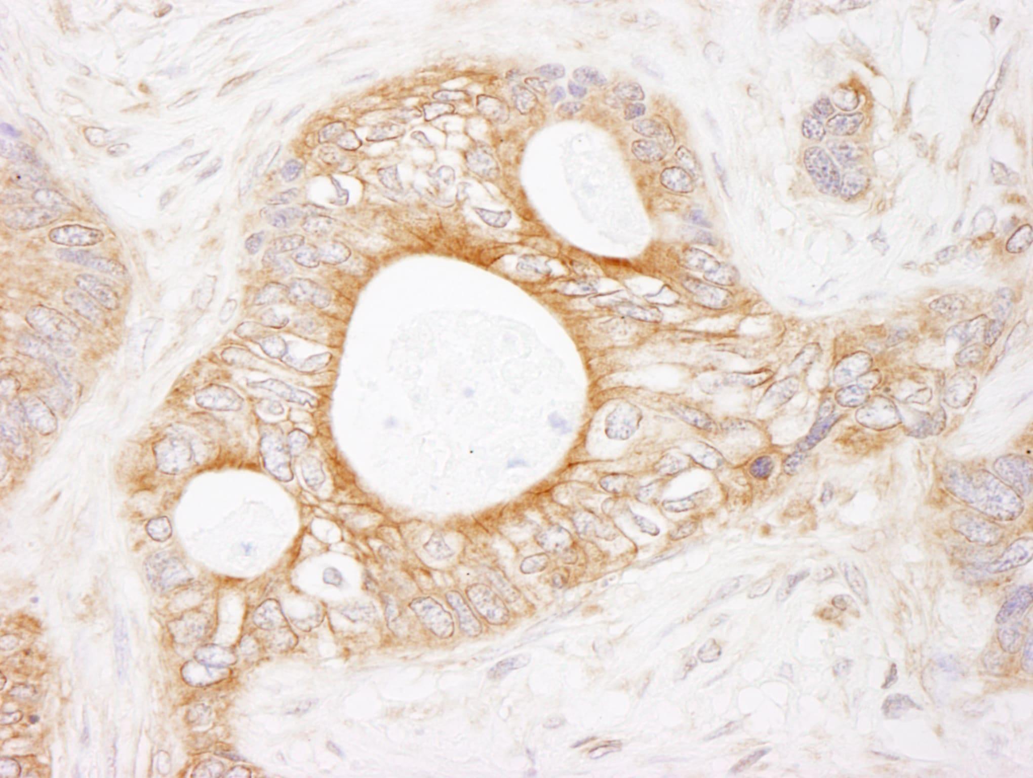 eEF2 Kinase Antibody in Immunohistochemistry (IHC)