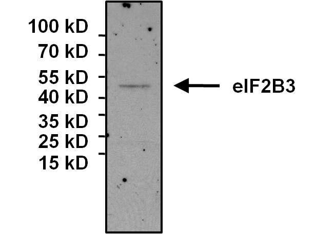 eIF2b gamma Antibody in Immunoprecipitation (IP)