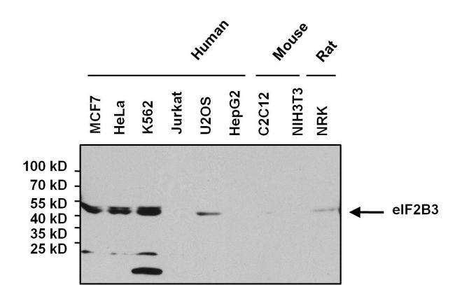 eIF2b gamma Antibody in Western Blot (WB)