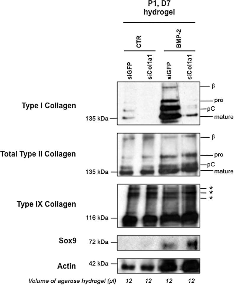 Collagen II Antibody