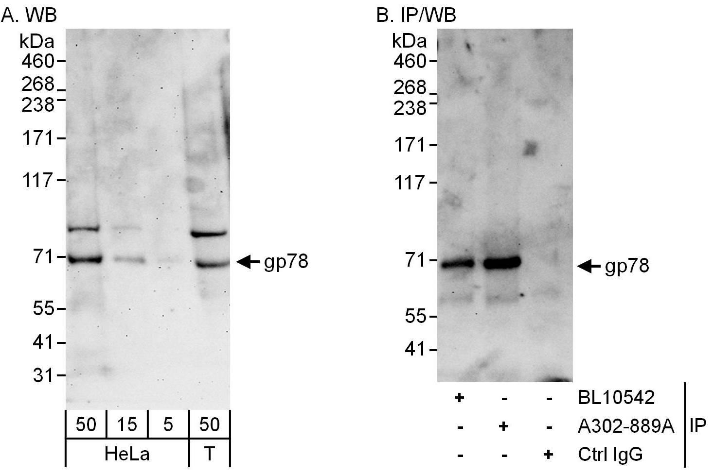 gp78 Antibody in Western Blot (WB)