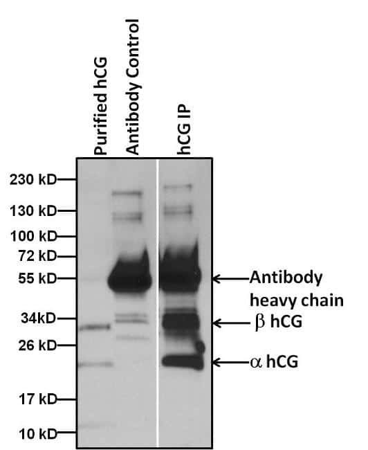 hCG Antibody in Immunoprecipitation (IP)