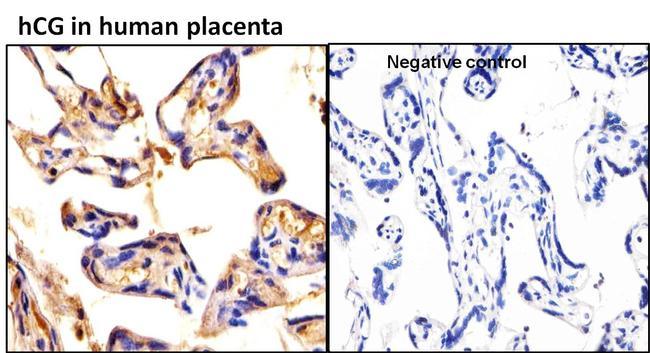 hCG Antibody in Immunohistochemistry (Paraffin) (IHC (P))