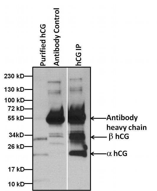 hCG Antibody in Immunoprecipitation (IP)