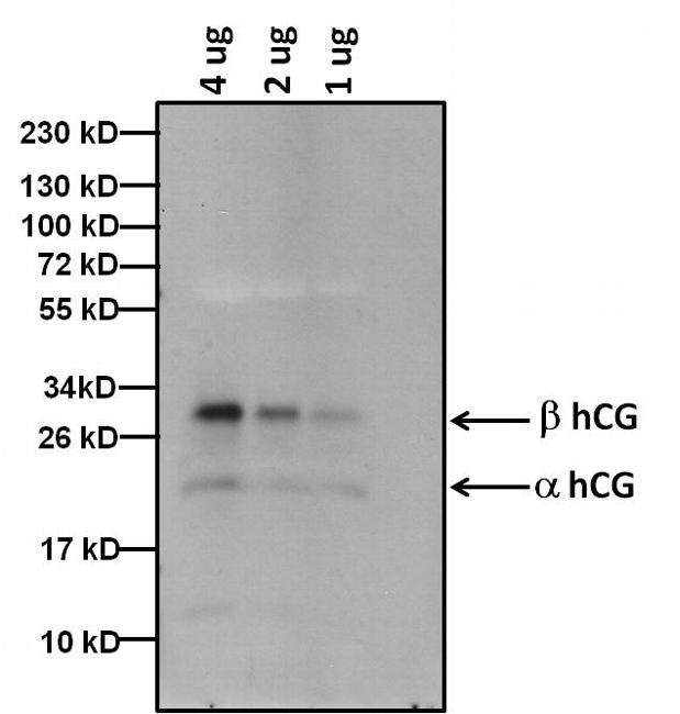hCG Antibody in Western Blot (WB)
