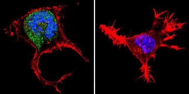 iNOS Antibody in Immunofluorescence (IF)