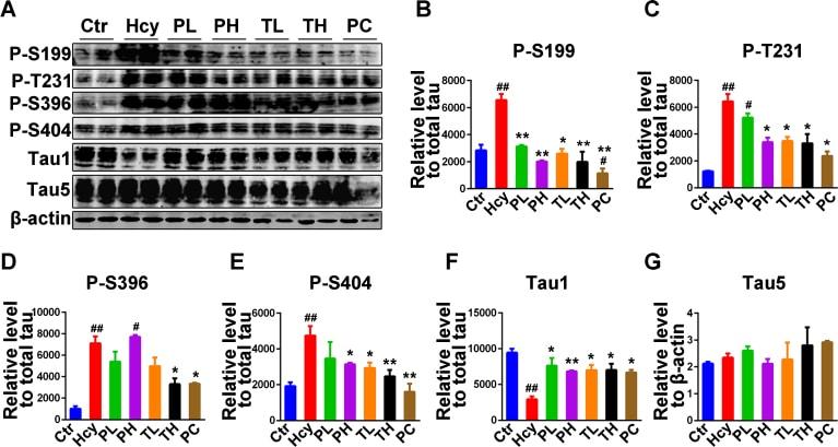 Phospho-Tau (Ser199) Antibody