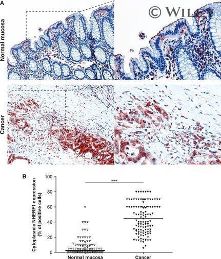 EBP50 Antibody