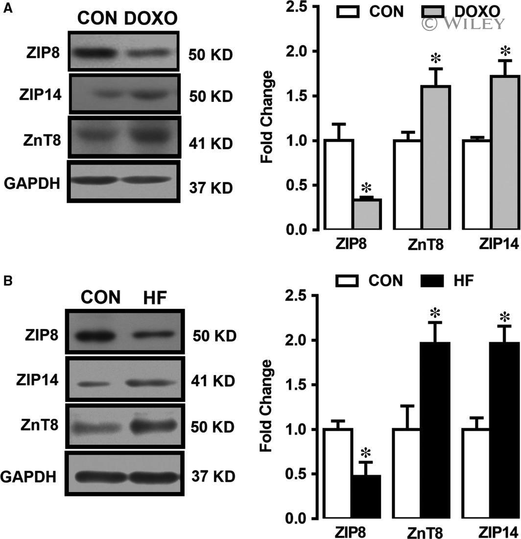 ZIP14 Antibody