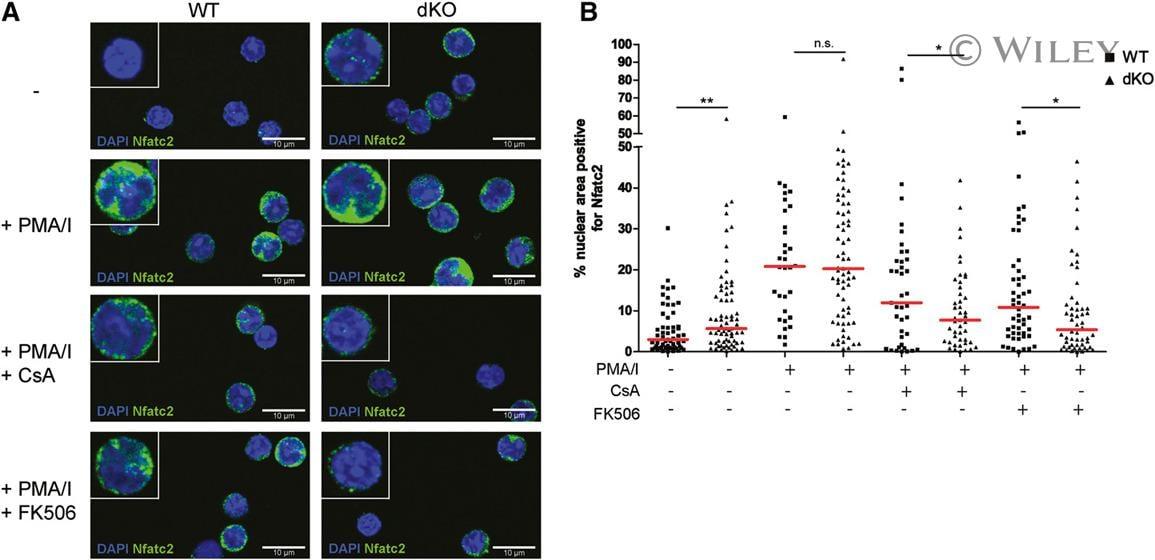 NFATC2 Antibody