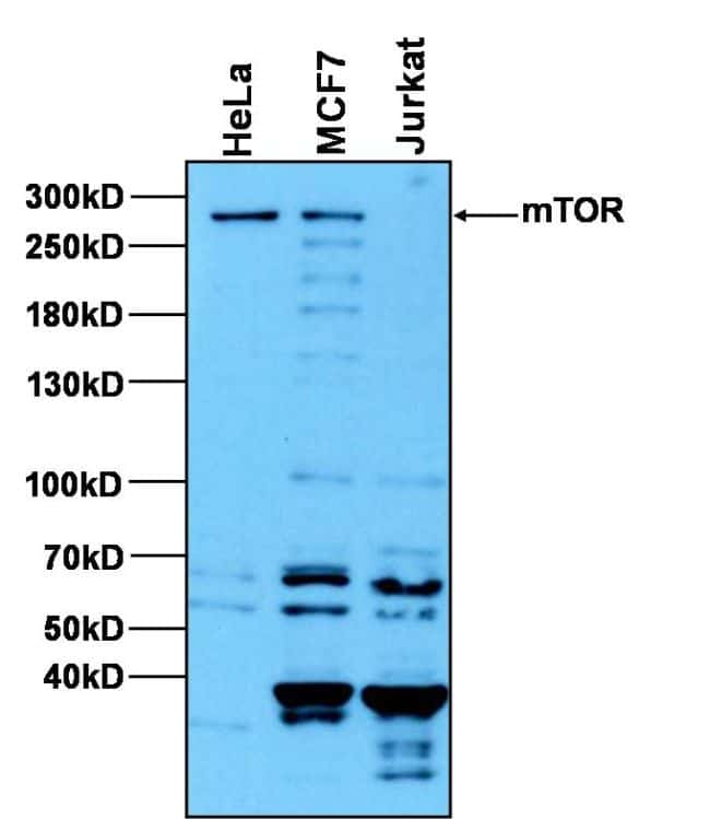 Western Blot Secondary Antibody Overnight Room Temperature