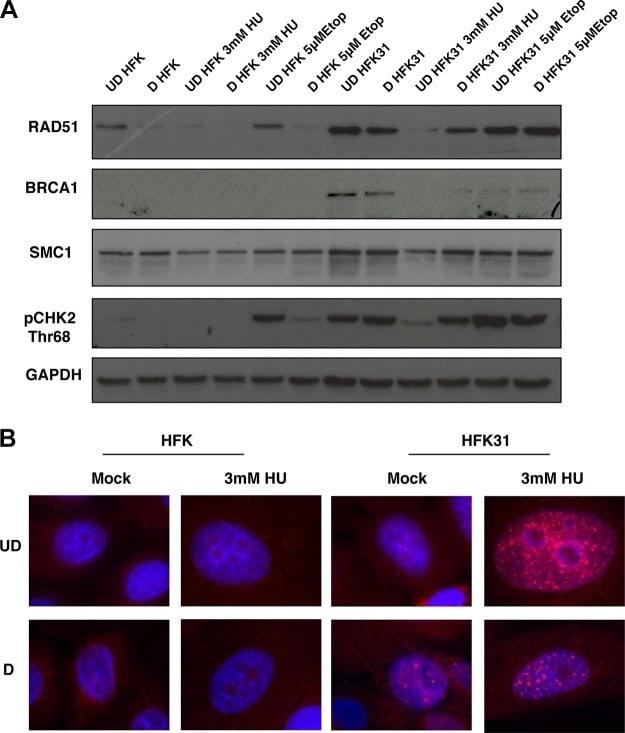 BRCA1 Antibody