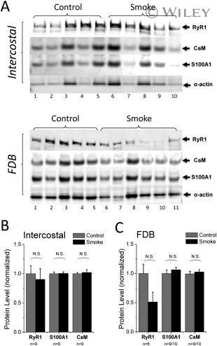 RyR1 Antibody