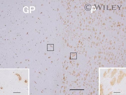 beta Amyloid (1-42) Antibody in Immunohistochemistry, Immunohistochemistry (Paraffin) (IHC, IHC (P))