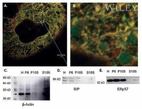 ERp57 Antibody