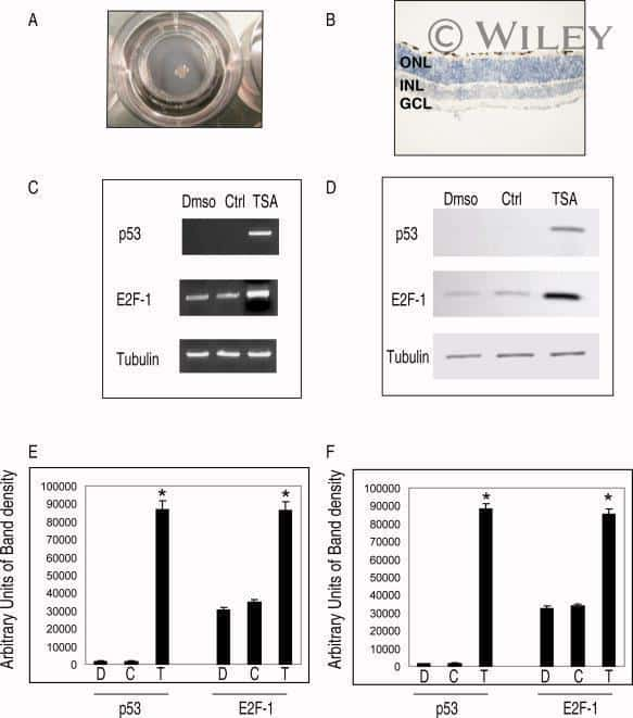 E2F1 Antibody (Monoclonal, KH95)