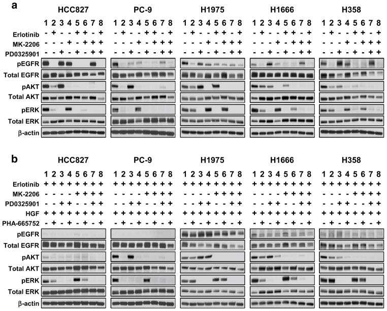 Phospho-EGFR (Tyr1068) Antibody