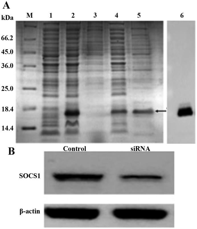 SOCS1 Antibody in Western Blot (WB)