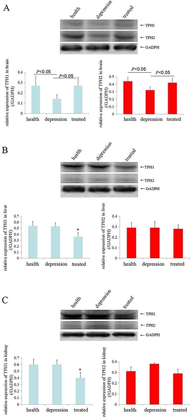 Tryptophan Hydroxylase Antibody