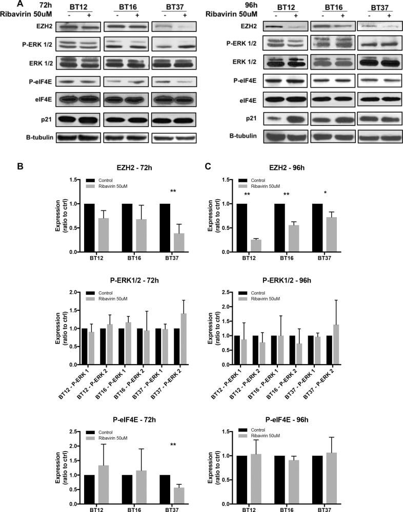 EZH2 Antibody