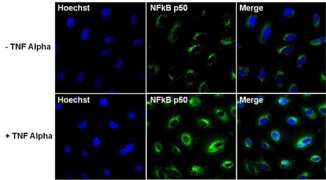 Phospho-NFkB p50 (Ser337) Antibody in Cell Treatment