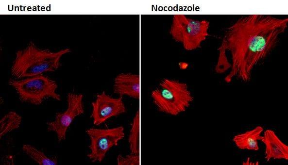 Phospho-Rb (Ser608) Antibody in Immunofluorescence (IF)