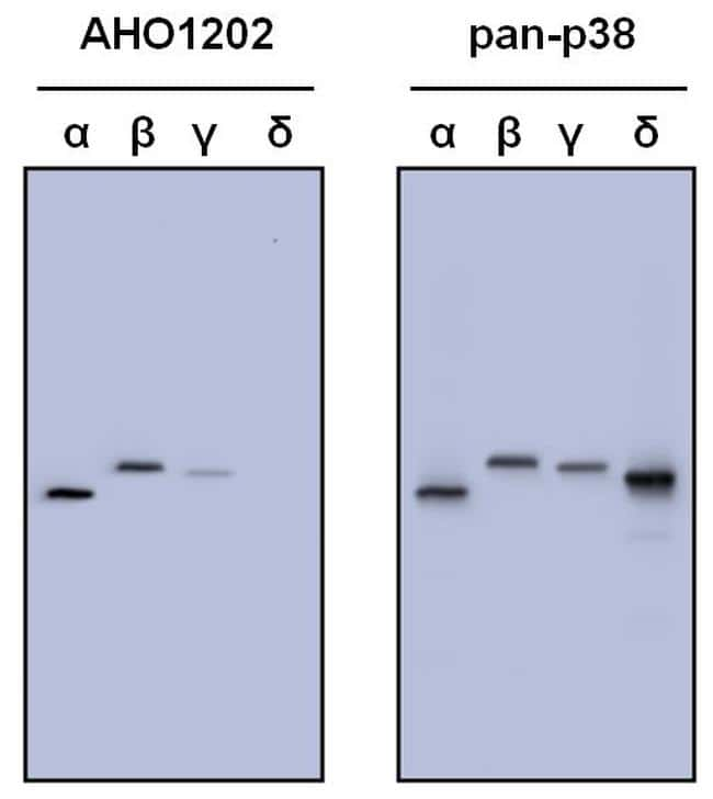 Secondary Antibody Left At Room Temperature