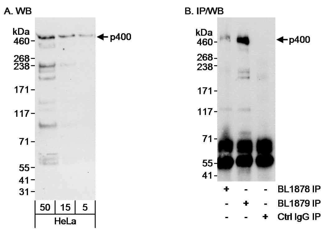 p400 Antibody in Western Blot (WB)