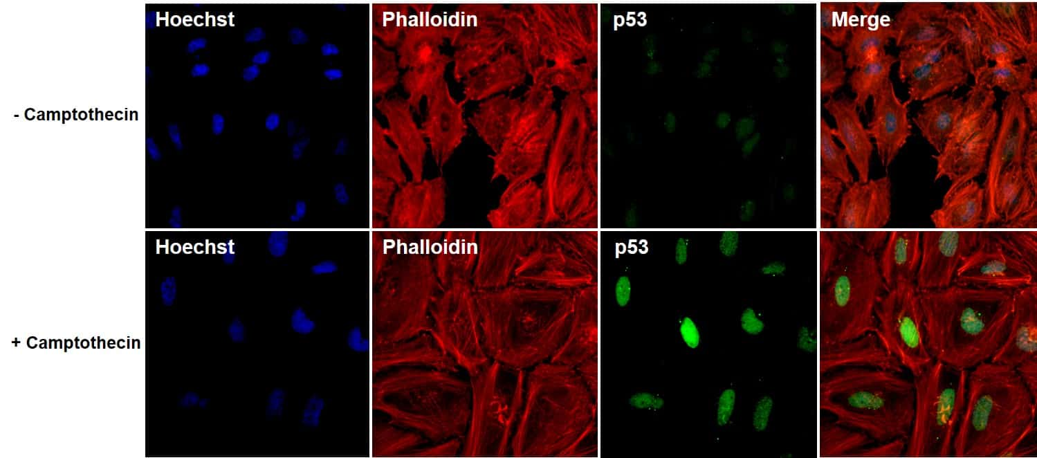 p53 Antibody in Immunofluorescence (IF)