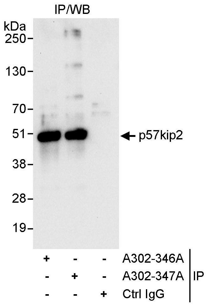 p57kip2 Antibody in Immunoprecipitation (IP)