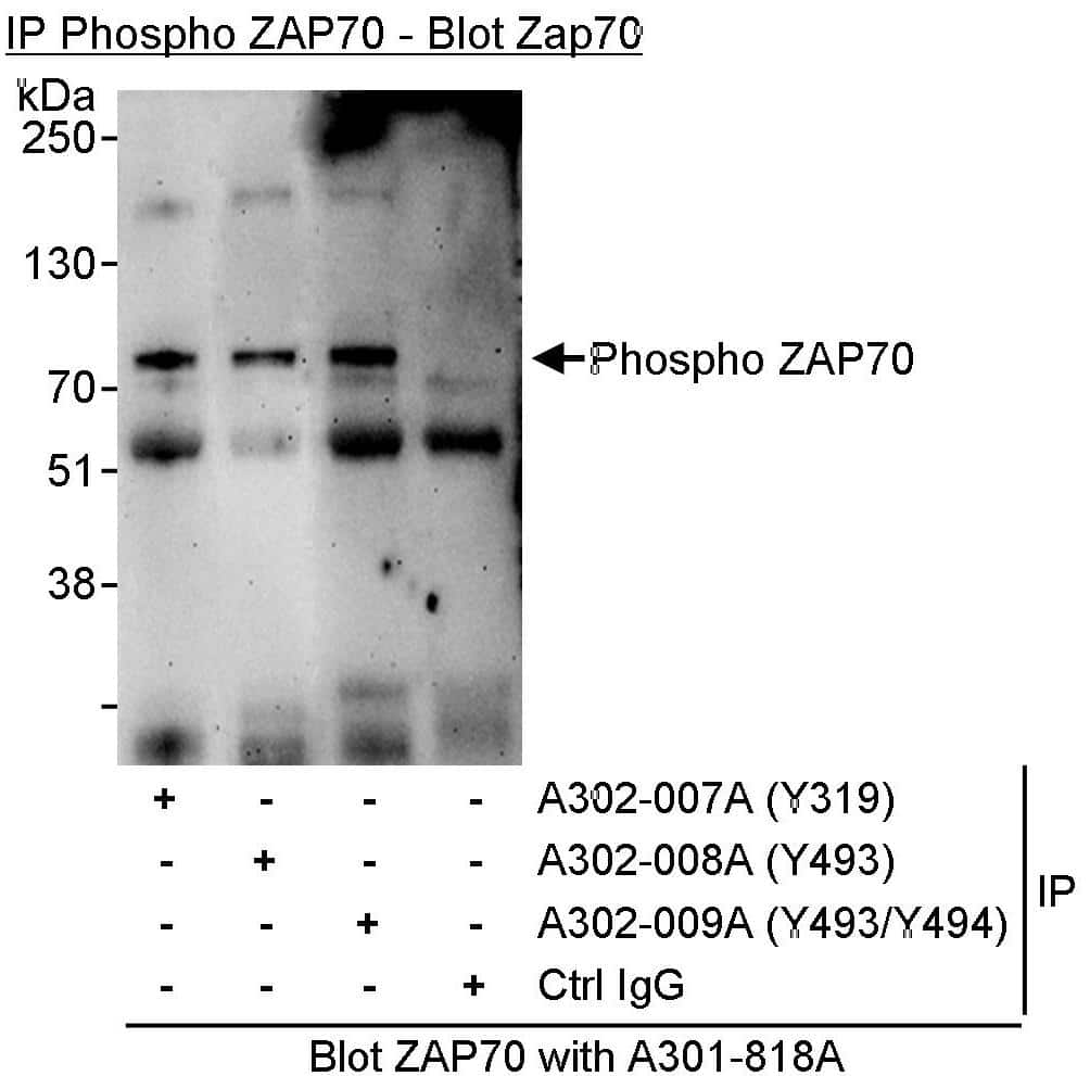 Phospho-ZAP70 (Tyr493) Antibody in Immunoprecipitation (IP)