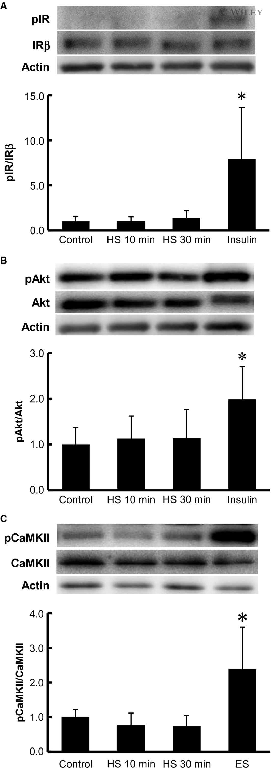 Phospho-IR/IGF1R (Tyr1158, Tyr1162, Tyr1163) Antibody