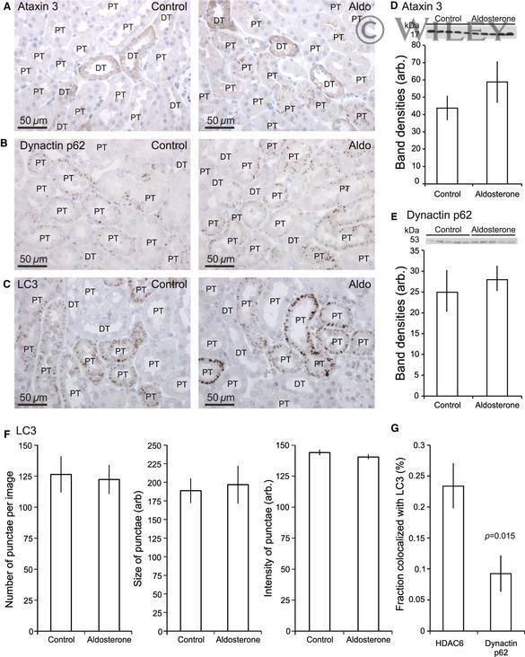 Ataxin 3 Antibody