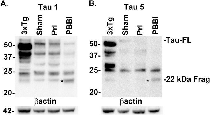 Tau (Cleaved Asp421, Asp422) Antibody