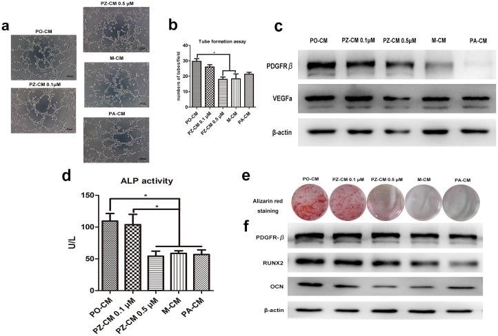 PDGFRB Antibody