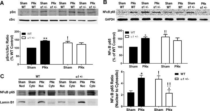 Phospho-SRC (Tyr419) Antibody