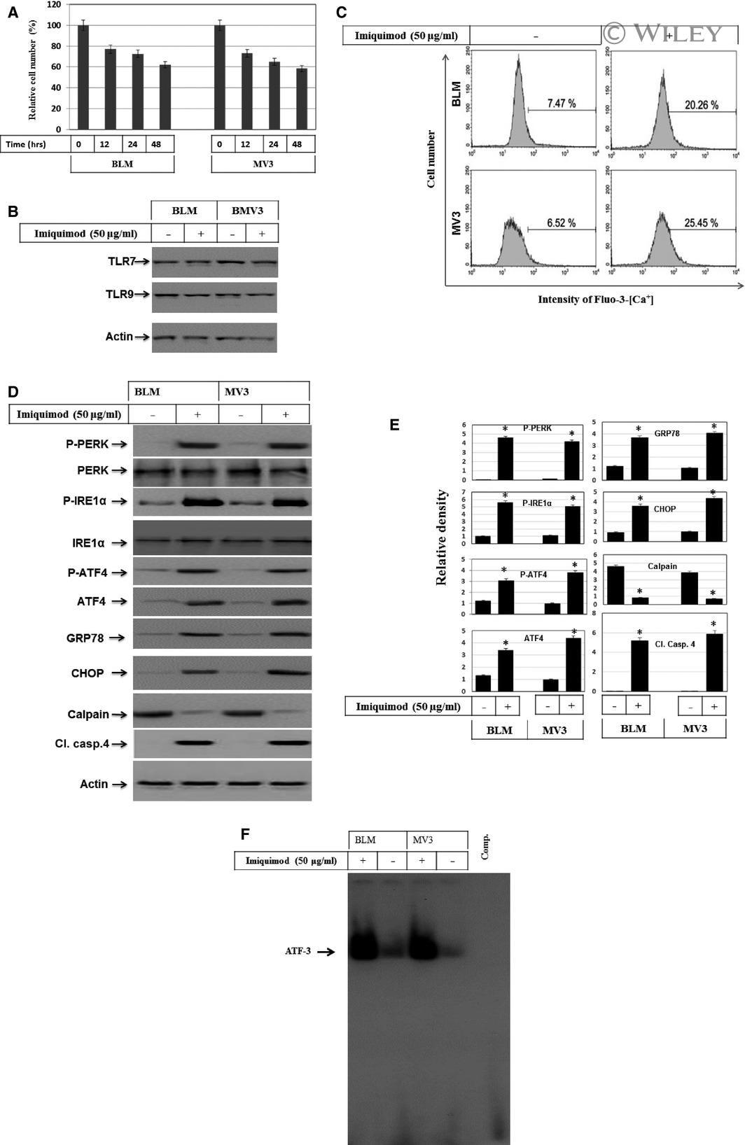 Phospho-IRE1 alpha (Ser724) Antibody