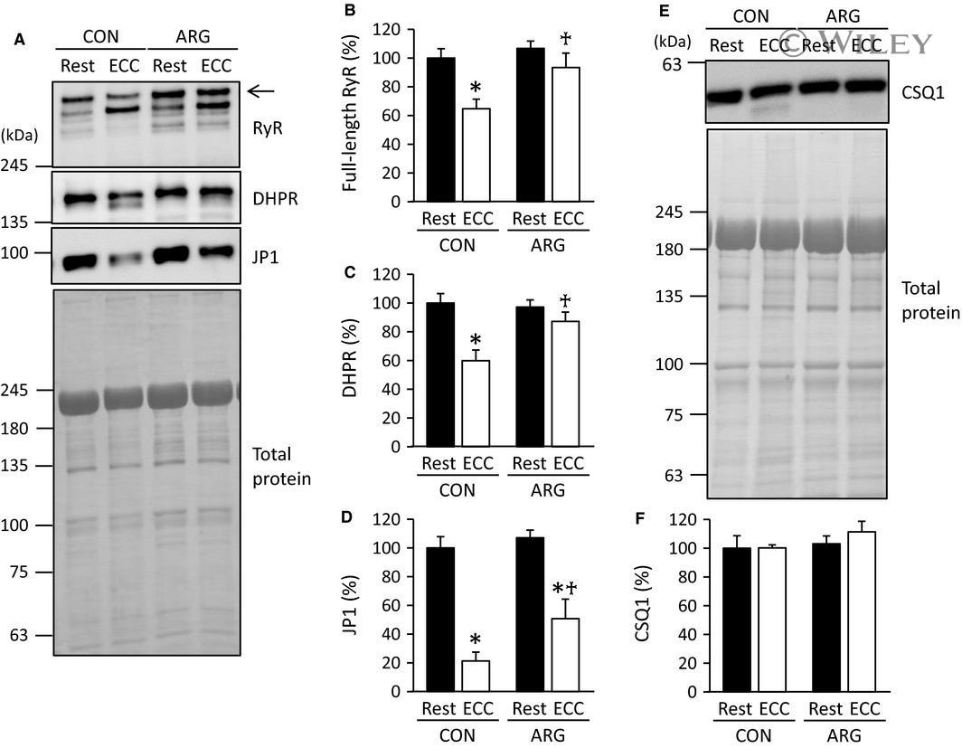 CaV1.1 Antibody