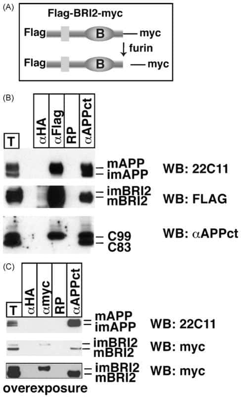 beta Amyloid Antibody in Western Blot, Immunoprecipitation (WB, IP)
