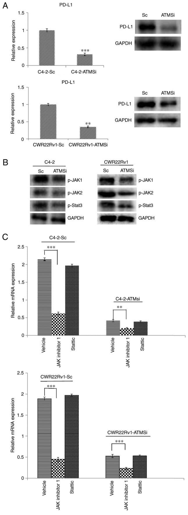 Phospho-JAK2 (Tyr1007, Tyr1008) Antibody