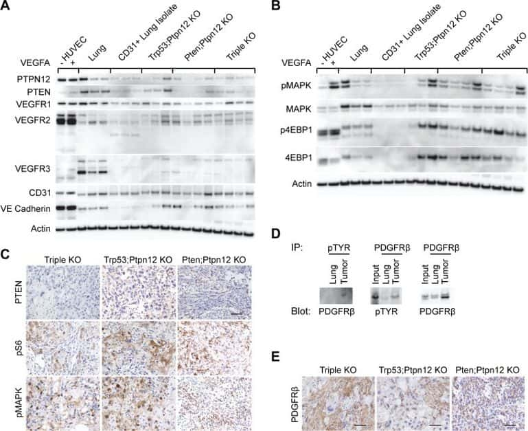 VEGF Receptor 3 Antibody